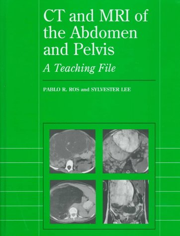 9780683182187: CT and MRI of the Abdomen and Pelvis: A Teaching File (Radiology Teaching File)