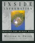 INSIDE INFORMATION: Imaging the Human Body: William A. Ewing