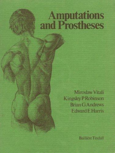 Amputations and Prostheses: Miroslaw Vitali; Kingsley