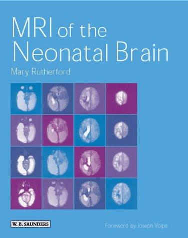 9780702025341: MRI of the Neonatal Brain
