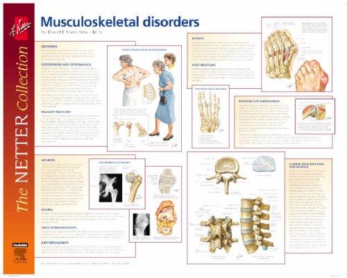 9780702029042: Frank H. Netter Musculoskeletal Disorders Poster: European Netter Poster Series