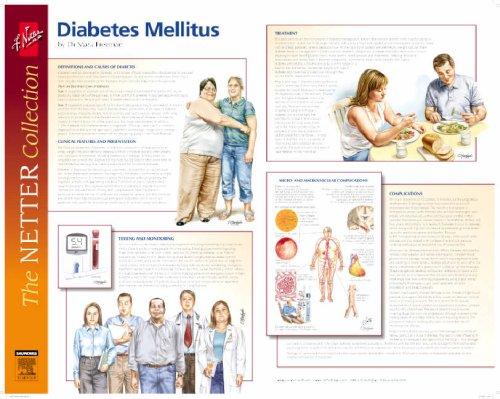 9780702029097: Frank H. Netter Diabetes and Complications Poster: European Netter Poster Series, 1e