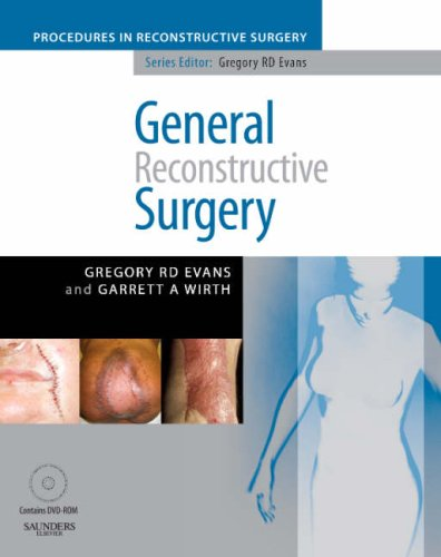 9780702029257: General Reconstructive Surgery [With Dvdrom] (The Procedures in Reconstructive Surgery)