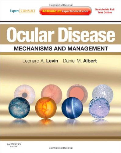 9780702029837: Ocular Disease: Mechanisms and Management: Expert Consult - Online and Print, 1e
