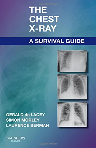 9780702030468: The Chest X-Ray: A Survival Guide, 1e