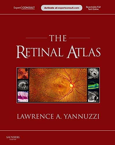 The Retinal Atlas: Expert Consult - Online: Lawrence A. Yannuzzi