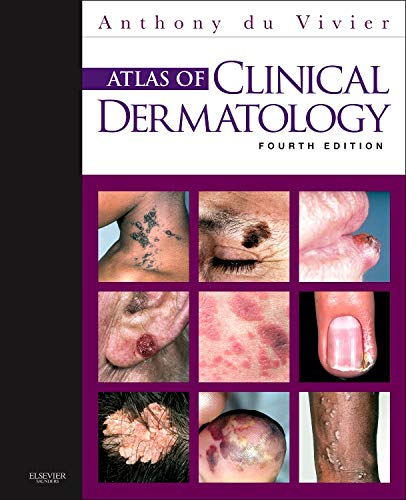 9780702034213: Atlas of Clinical Dermatology, 4e (du Vivier, Atlas of Clinical Dermatology)