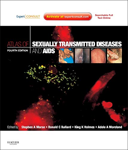 9780702040603: Atlas/Sex Trans Dis&AIDS 4e