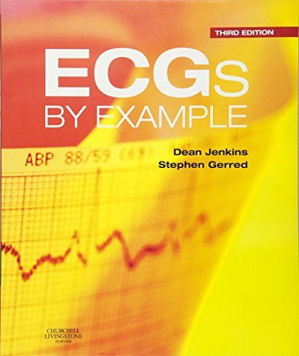 9780702042287: ECGs by Example