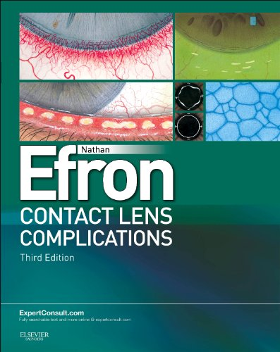 9780702042690: Contact Lens Complications: Expert Consult - Online and Print, 3e