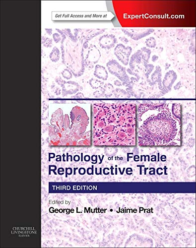 9780702044977: Pathology of the Female Reproductive Tract, 3e (Expert Consult)