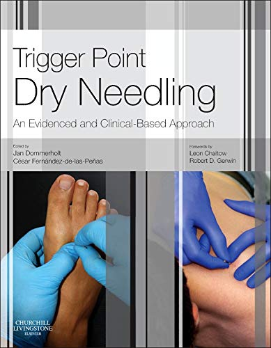 9780702046018: Trigger Point Dry Needling: An Evidence and Clinical-Based Approach, 1e