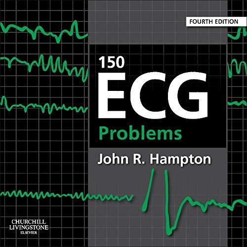 9780702046452: 150 ECG Problems, 4e