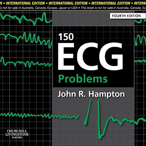 9780702046711: 150 ECG Problems