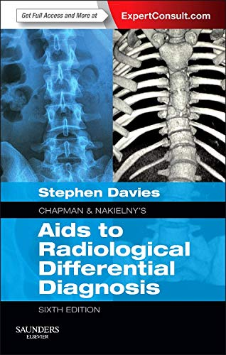 9780702051760: Chapman & Nakielny's Aids to Radiological Differential Diagnosis: Expert Consult - Online and Print, 6e