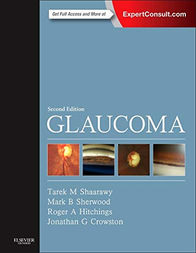 9780702051937: Glaucoma: 2-Volume Set, 2e