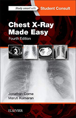 9780702054990: Chest X-Ray Made Easy, 4e