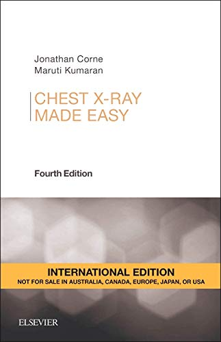 9780702055003: Chest X-Ray Made Easy