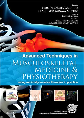 9780702062346: Advanced Techniques in Musculoskeletal Medicine & Physiotherapy: using minimally invasive therapies in practice, 1e