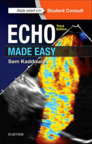 Echo Made Easy, 3e (Paperback)