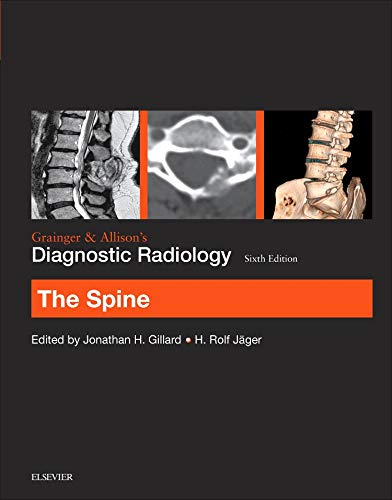 9780702069345: Grainger & Allison's Diagnostic Radiology: The Spine, 6e