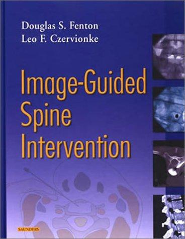 Image-Guided Spine Intervention, 1e: Douglas S. Fenton; Leo F. Czervionke