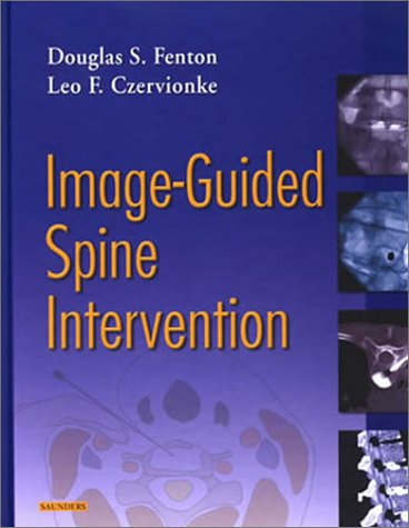 9780721600215: Image-Guided Spine Intervention, 1e