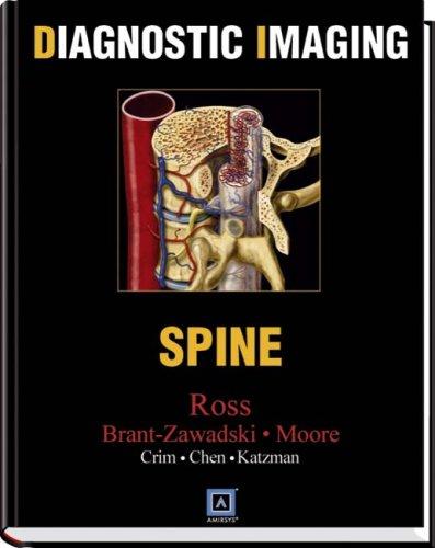 9780721628806: Diagnostic Imaging: Spine