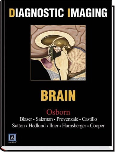 9780721629056: Diagnostic Imaging: Brain