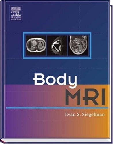 9780721637402: Body MRI, 1e