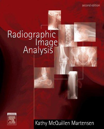 9780721639253: Radiographic Image Analysis, 2e
