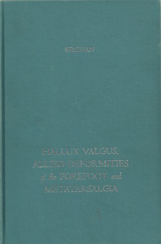 9780721653556: Hallux Valgus: Allied Deformities of the Forefoot and Metatarsalgia