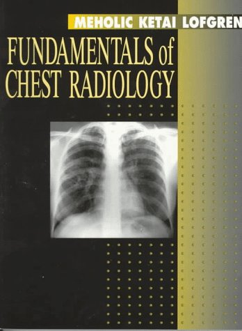 9780721654003: Fundamentals of Chest Radiology, 1e (Fundamentals of Radiology)