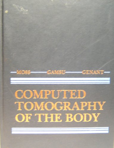 9780721665740: Whole Body Computed Tomography