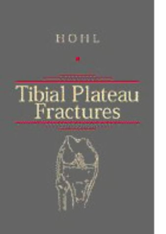 9780721670157: Tibial Plateau Fractures, 1e