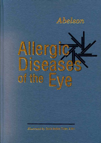 9780721686790: Allergic Diseases of the Eye