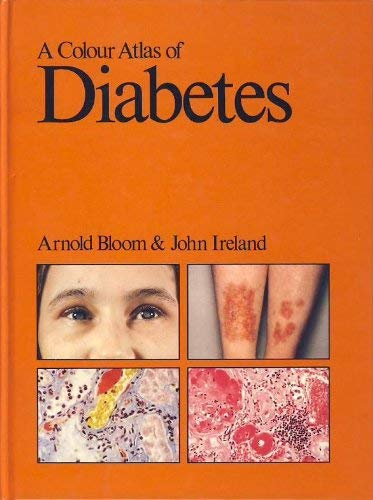 9780723407201: A Colour Atlas of Diabetes by Arnold Bloom and John Ireland