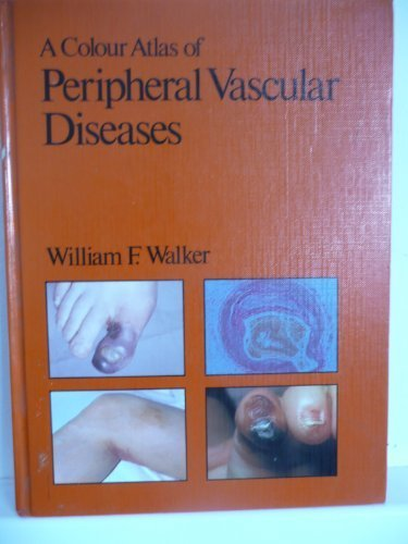 9780723407386: A Colour Atlas of Peripheral Vascular Diseases