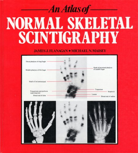 9780723408291: An Atlas of Normal Anatomy in Skeletal Scintigraphy