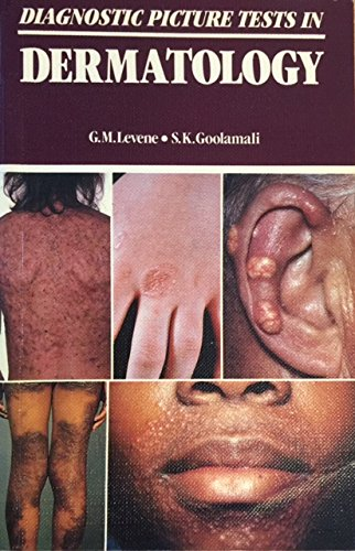 9780723409106: Diagnostic Picture Tests in Dermatology