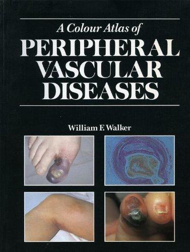 9780723415480: Colour Atlas of Peripheral Vascular Diseases