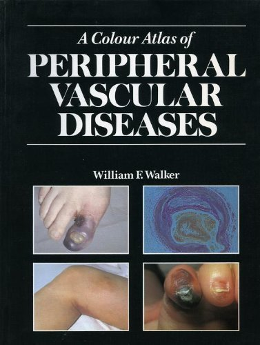 9780723415480: Colour Atlas of Peripheral Vascular Diseases