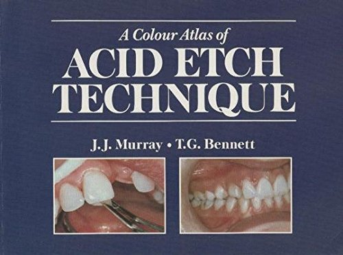 9780723416050: A Colour Atlas of Acid Etch Technique
