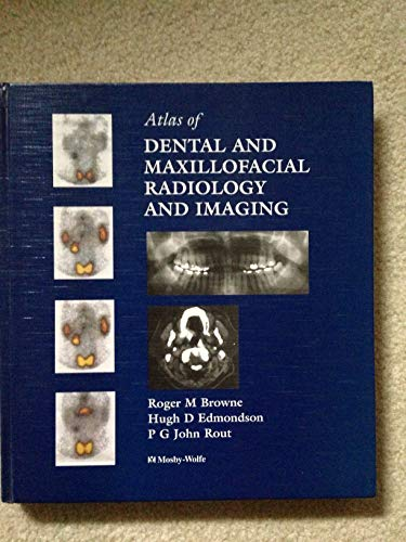 9780723417255: Atlas of Dental Maxillofacial Radiology