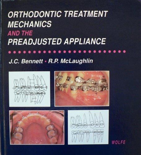 Orthodontic Treatment Mechanics and the Preadjusted Appliance: John C. Bennett