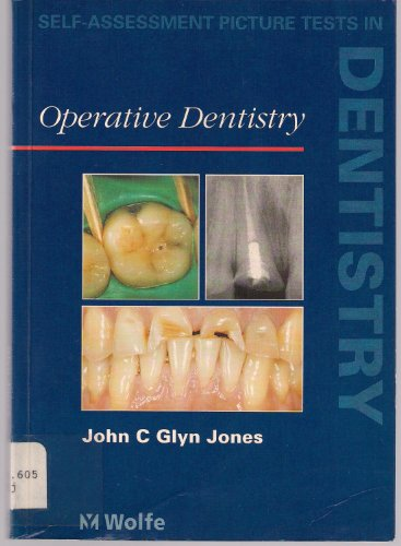 Self Assessment Picture Tests in Dentistry: Operative: Glyn Jones BDS(Lond)