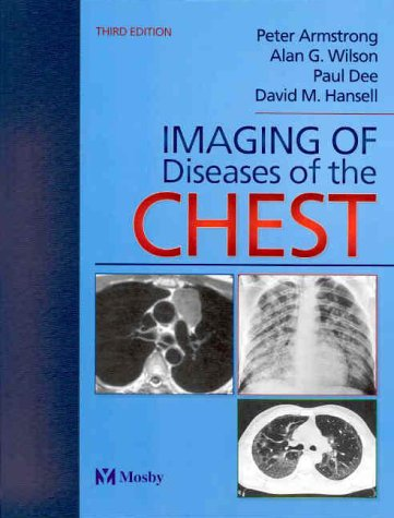 9780723431664: Imaging of Diseases of the Chest