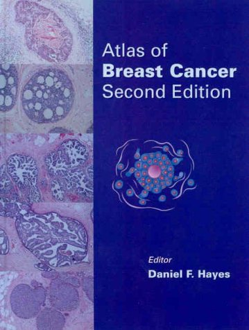 9780723431763: Atlas of Breast Cancer