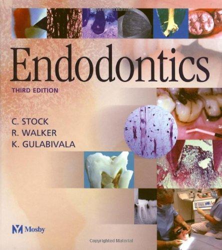 9780723432036: Endodontics, 3e