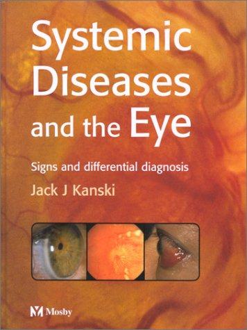 Systemic Diseases and the Eye: Kanski MD MS FRCS FRCOphth, Jack J., Kanski, Jack J.